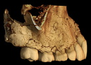 Qafzeh15 right maxilla